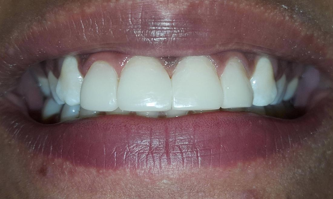 Cosmetic Bonding to Close Spaces