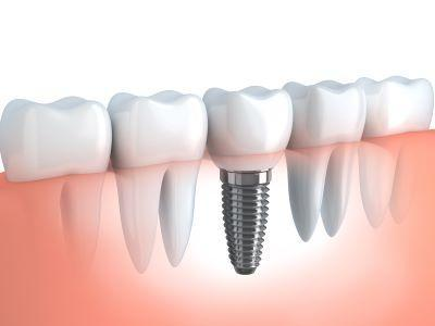 dental implants colorado springs co