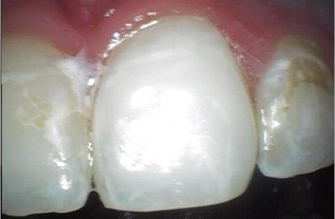 repaired front tooth from cosmetic bonding