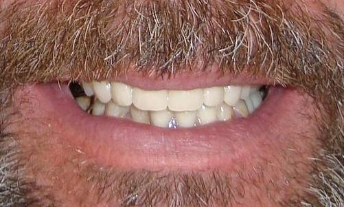 Dentures And Partials Colorado Springs Co Dentist 80909