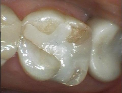 Repair Of A Fractured Filling Dentist In Colorado Springs Co