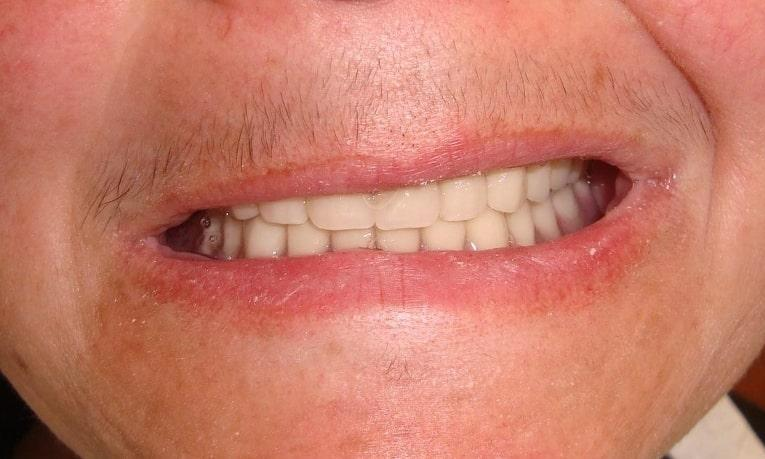 Full Set Of Dentures | Springs Family Dental | Colorado Springs, CO