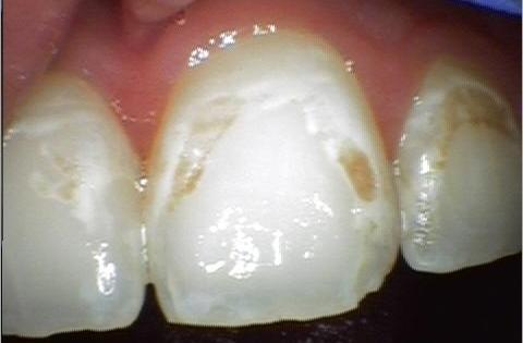 damaged front tooth
