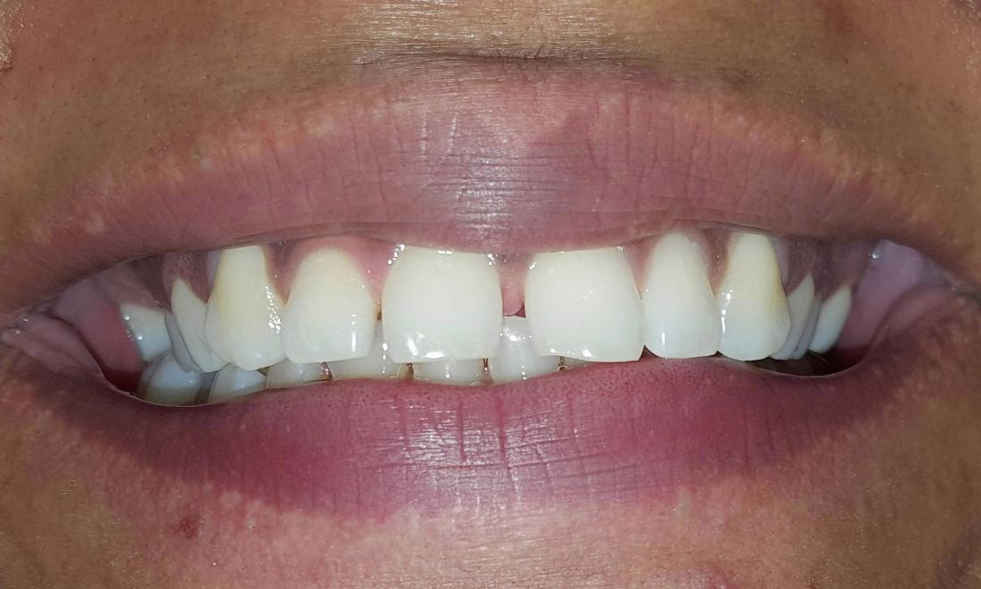 Smile With Some Gaps In The Front | Springs Family Dental | Colorado Springs, CO