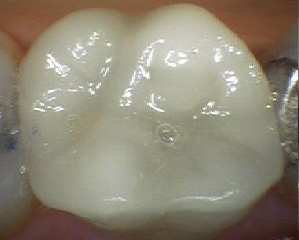 Replacing A Cracked Tooth With A Ceramic Crown