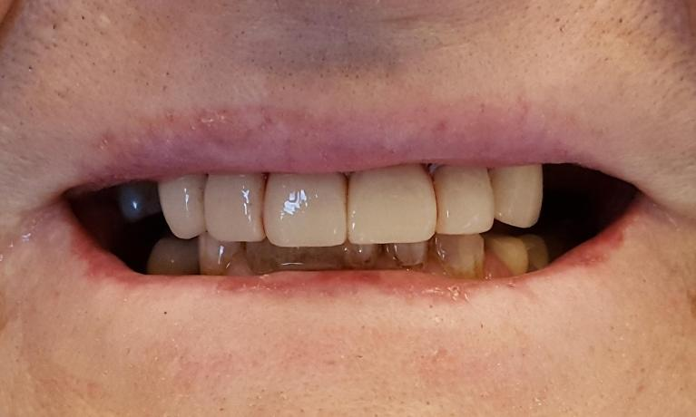 Dental Bonded Worn And Stained Teeth To Enhance The Teeth
