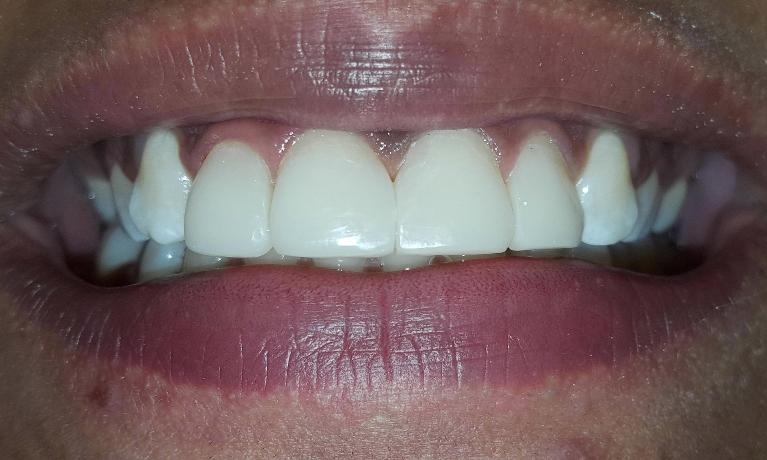 Dental Bonding To Fix Gaps In The Teeth Without Removing The Natural Tooth