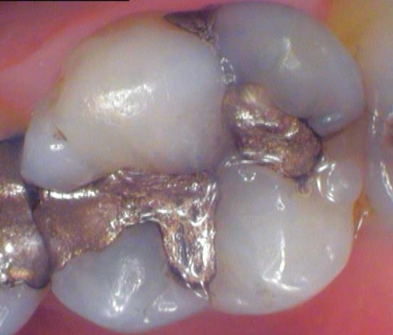 Cracked Tooth With Amalgam Silver Fillings