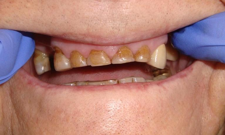 Cosmetic-Bonding-For-Worn-Teeth-Before-Image