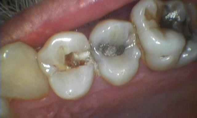 Fillings-for-Tooth-Decay-Before-Image